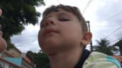 El pequeño recibió varios puntos en el cuello.