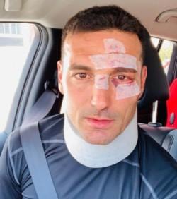 Scaloni chocó con su bicicleta y le dieron varios puntos de sutura en el rostro.