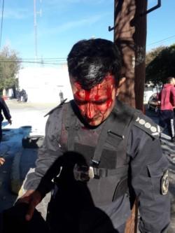 El Comisario Miguel Gómez resultó lesionado en los enfrentamientos (fotos Tu Lugar FM)