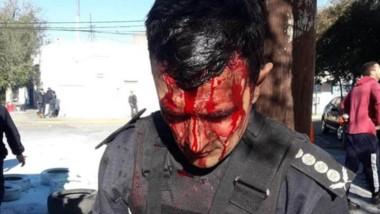 Sangre. El jefe de la Policía, Miguel Gómez, terminó con diez puntos.
