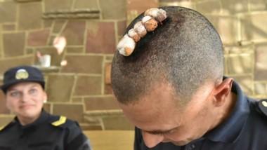 Los puntos de sutura del jefe de la Policía tras los incidentes.