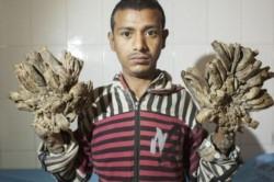 Abul Bajandar, de 28 años, sufre epidermodisplasia verruciforme.