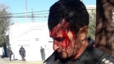 Sangre. El jefe de la Policía, Miguel Gómez, herido el día del episodio.