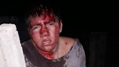 La víctima quedó ensangrentada pero pese al incidente, se recupera.