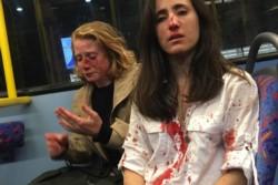 Melania Geymonat, de camisa blanca y su novia, la estadounidense Chris, segundos despues del brutal ataque homofóbico.