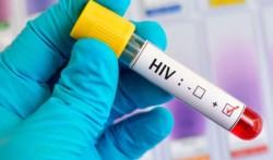 Tres ex directivos de la Fundación de la Hemofilia comenzaron a ser juzgados en juicio oral, luego de 30 años, por el contagio masivo de pacientes con VIH y hepatitis C.