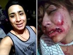 La joven atacada hizo la denuncia en las redes sociales, en donde subió fotos de las heridas sufridas