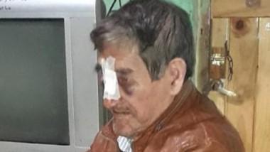 El rostro de Abraham Moraga muestra la violencia del ataque hacia él.