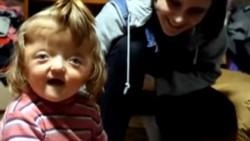 Sofya Zakharova nació con una malformación en su cráneo y no la aceptan en la guardería.
