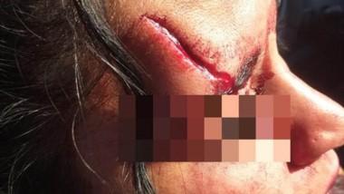 Las marcas de los golpes y la profunda herida en la cabeza de la mujer.