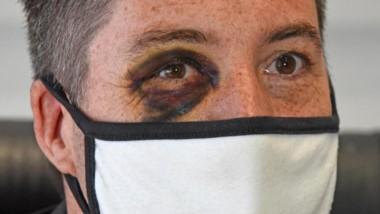 El testimonio. Así le quedó el ojo al funcionario municipal tras la agresión por parte del sindicato.