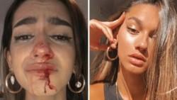 """Eva Vildosola una joven trans conocida en redes sociales denunció que sufrió una golpiza al salir de su casa por ser """"transexual""""."""