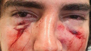 Lautaro Insúa, de 18 años, fue el joven agredido por varios rugbiers, y por las heridas sufridas en el rostro deberá someterse a cirugía reconstructiva.
