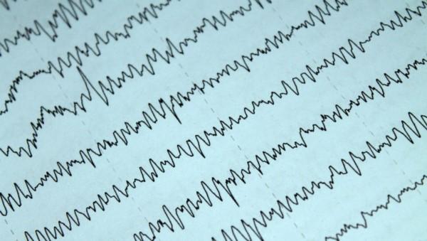 Imagen ilustrativa de un electroencefalograma.