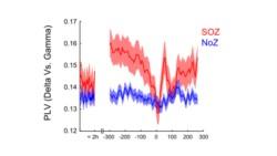 Gráfico que muestra el acoplamiento de frecuencias cerebrales y cómo aumenta en los minutos previos al inicio de la crisis (tiempo 0). Foto: gentileza investigadoras.