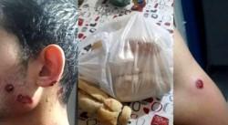 Un hombre denunció que salió a comprar pan, en horas de la tarde, y recibió disparos de balas de goma en el cuello y en la mandíbula.