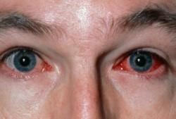 Especialistas advierten a los oftalmólogos que extremen los cuidados y estén alertas a derivar a los pacientes.