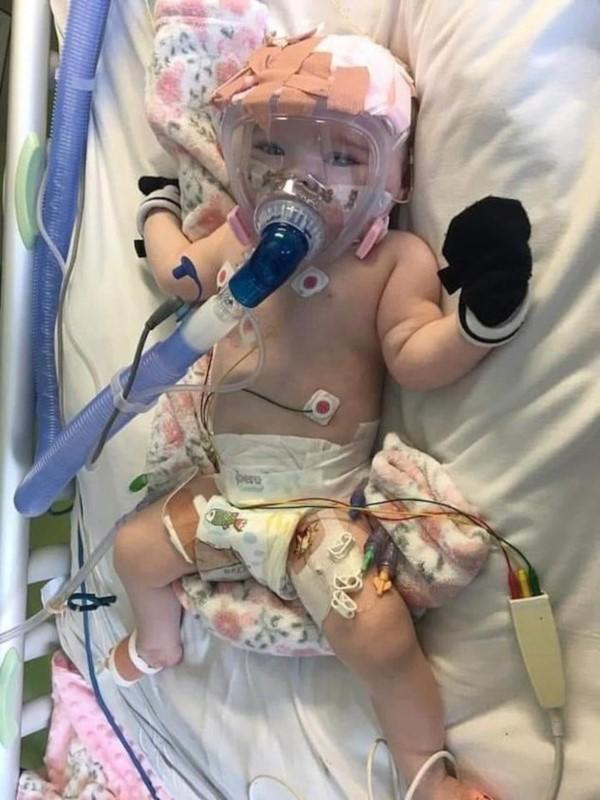 La pequeña también sufrió de traqueomalacia y bronquiomalacia, por lo que fue necesario que use un respirador.