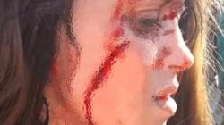 La víctima recibió 25 puntos de sutura por un profundo corte que le abrió casi de punta a puta la mejilla derecha.
