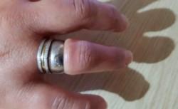 """Al cabo de un rato, sumado a un arduo y delicado trabajo con herramientas, los bomberos lograron romper el anillo y así liberar el dedo de la mujer que ya estaba """"muy inflamado""""."""