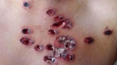 Postas de goma. Una de las imágenes que documenta cómo quedó el pecho del vecino tras la agresión.