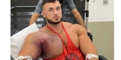 El reconocido fisicoculturista Ryan Crowley sufrió una tremenda lesión mientras se encontraba realizando su rutina de entrenamiento.