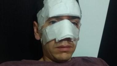 El oficial Víctor Crettón con su rostro vendado tras la agresión.