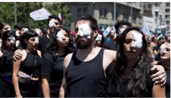 Hubo una estrategia de las fuerzas de Seguridad para atacar sistemáticamente a los manifestantes, lastimándoles un ojo.