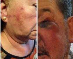 Los ancianos fueron salvajemente golpeados para sustraerle $ 15.000 en el interior de su domicilio.