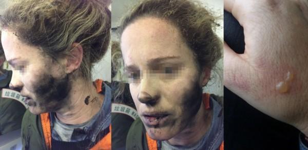 La joven australiana sufrio graves quemaduras luego de que sus auriculares explotaran.