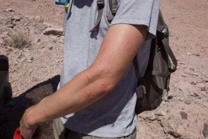 A few mosquito bites