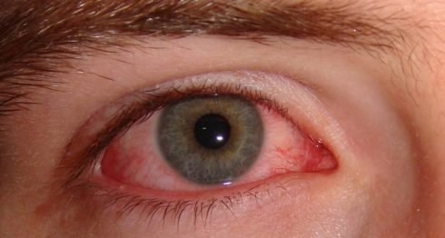 Conjuntivitis, ojos, llorona