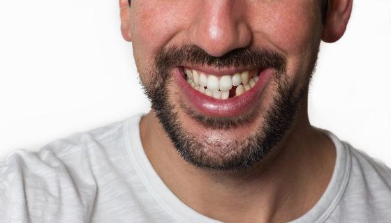 pérdida de dientes, pérdidas de dientes