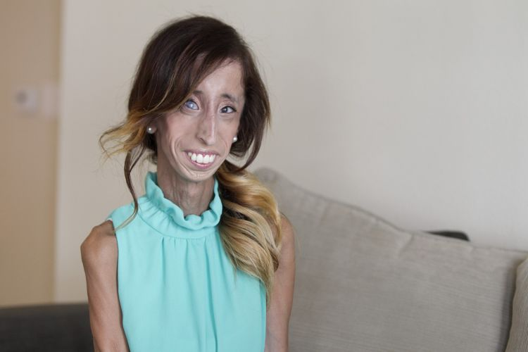 Lizzie Velásquez, bullying