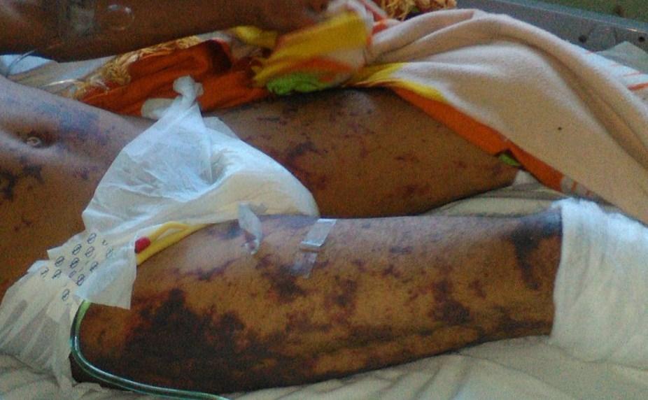 Juan Rafael Lanzas enfermó hasta perder las piernas. LA PRENSA/ CORTESÍA CENIDH
