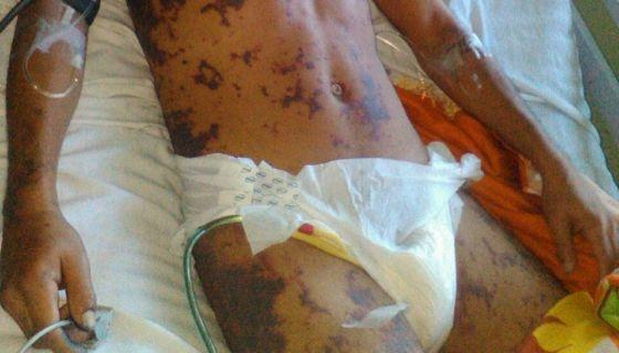 Juan Rafael Lanzas, quien perdió las piernas mientras permaneció detenido en celdas de la delegación policial de Matagalpa. LA PRENSA/ CORTESÍA CENIDH