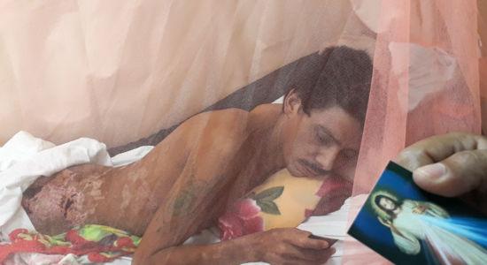Juan Lanzas curándose de sus heridas en una cama del Hospital de Matagalpa. LA PRENSA / Óscar Navarrete.
