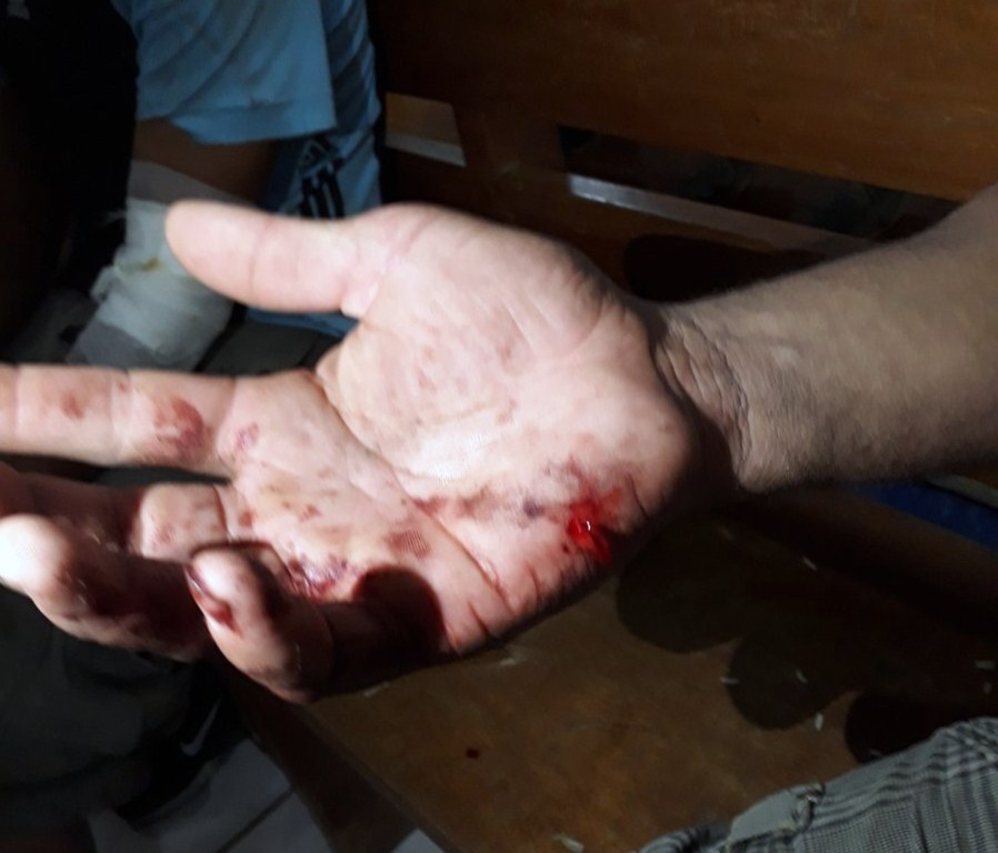 Los heridos en Sébaco la noche de este lunes, tras los ataques de las turbas del Gobierno, fueron trasladados a la iglesia del pueblo. LA PRENSA/ LEONOR ÁLVAREZ