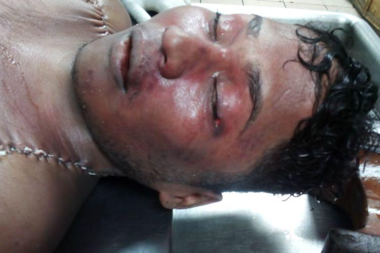 Un informe forense privado reveló que el cuerpo de Munguía tenía varios golpes en el cuerpo.