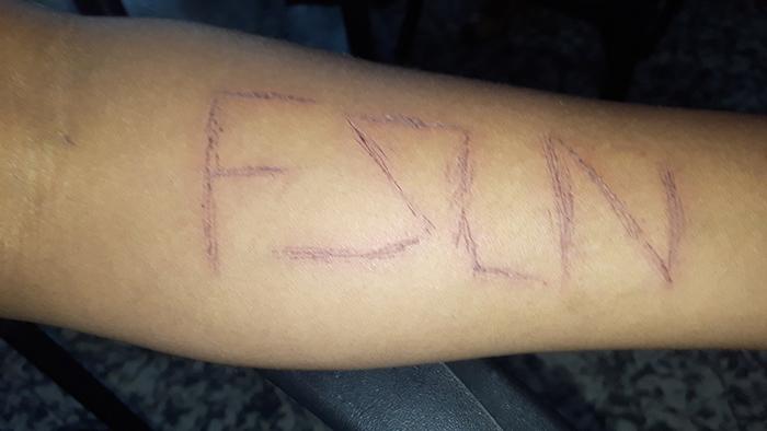 La tortura del FSLN en el brazo de un adolescente