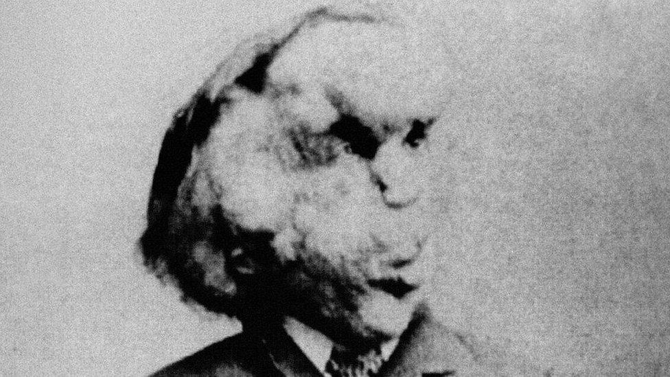 Joseph Merrick sorprendió a los médicos que lo atendieron en Londres por su inteligencia y sensibilidad.PA