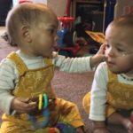 El bebé prematuro gravemente enfermo que mejoró en la incubadora luego del abrazo de su hermanito gemelo