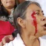 Policía Orteguista reprime y agrede a opositores, manifestantes y periodistas en Metrocentro