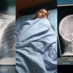 Ricardo Mayorga estuvo hospitalizado tras haber recibido una golpiza