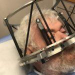 Me hicieron un implante cerebral para controlar mi adicción al alcohol