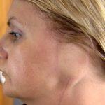 Melanoma: «Perdí una oreja por mi adicción al bronceado»