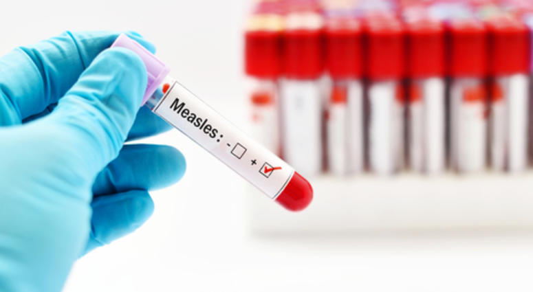 Rockland stiffens restrictions to curb measles in schools