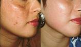Warnbro Skin & Body Clinic gallery image 7