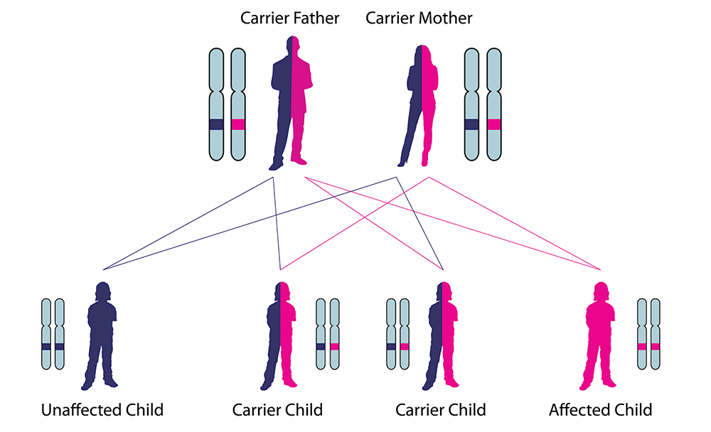 a research on genetic disorder and diseases A genetic disorder is a disease caused in whole or in part by a variation (a different form) or mutation (alteration) of a gene further reading what are genetic disorders multifactorial and polygenic (complex) genetic disorder.