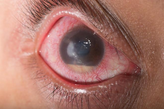 Glaucoma: The Silent Thief of Vision